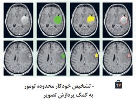 تشخیص خودکار محدوده تومور به کمک پردازش تصویر